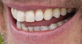 Matt Damon teeth