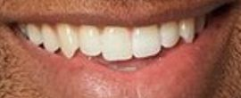 Picture of Bachelor Matt James teeth and smile