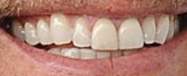 Picture of Kendrick Lamar teeth and smile