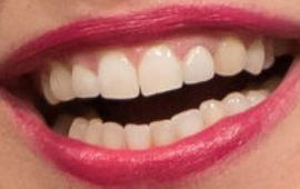 Picture of Mayim Bialik teeth and smile