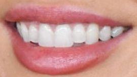 Megan Fox teeth
