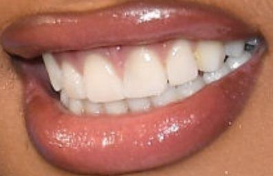 Megan Thee Stallion Teeth Pictures