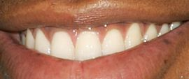 Picture of Mehcad Brooks teeth and smile