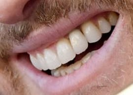 Picture of Michael Buble teeth and smile