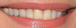 Picture of Michelle Pfeiffer's teeth while smiling
