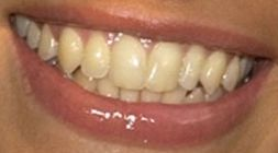 Picture of Michelle Rodriguez teeth and smile