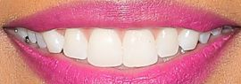 Picture of Michelle Williams teeth and smile