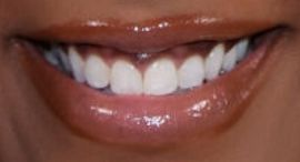 Picture of Mickey Guyton teeth and smile