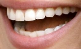 Picture of Mila Kunis's teeth while smiling
