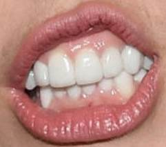 Miley Cyrus teeth