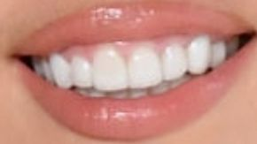 Miley Cyrus teeth and smile