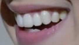 Picture of Millie Bobby Brown teeth and smile