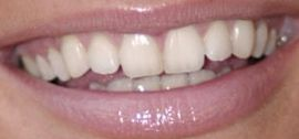Picture of Mischa Barton teeth and smile