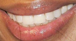 Picture of Naomi Campbell teeth and smile