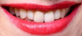 Picture of Naomi Watts teeth and smile