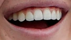 Picture of Nelly Korda teeth and smile