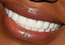 Picture of NeNe Leakes teeth and smile