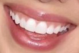 Picture of Nicole Franzel teeth and smile