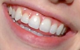 Picture of Nicole Linkletter teeth and smile