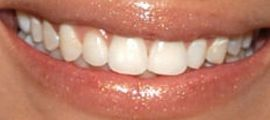 Picture of Nicole Richie teeth and smile