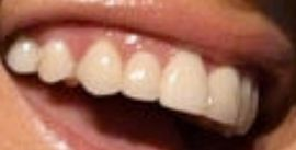 Picture of Nikki Bella teeth and smile