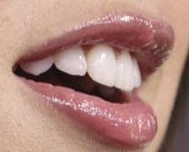 Picture of Olivia Rodrigo teeth and smile
