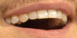 Picture of Orlando Bloom teeth and smile