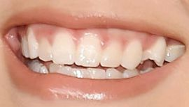Picture of Paris Berelc teeth and smile