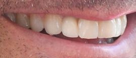Picture of Patrick Dempsey teeth and smile