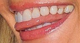 Picture of Paulina Porizkova teeth and smile
