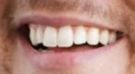 Picture of Peter Weber teeth and smile