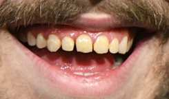 Post Malone's teeth