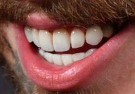 Post Malone's teeth