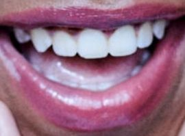 Picture of Priah Ferguson teeth and smile