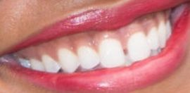 Picture of Rachel Lindsay teeth and smile