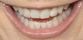 Picture of Reba McEntire teeth and smile