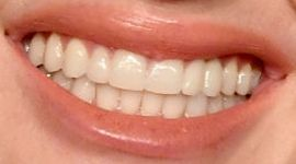 Picture of Rebel Wilson teeth and smile