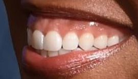 Picture of Regina King teeth and smile