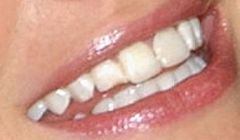 Picture of Rhea Durham's teeth while smiling