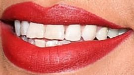 Picture of Rihanna teeth and smile