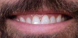 Picture of Rob McElhenney teeth and smile