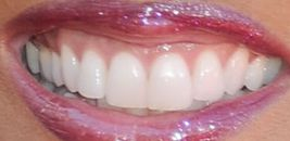 Picture of Robin Roberts teeth and smile