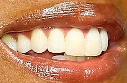 Robin Roberts teeth