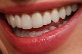 Picture of Ruby Rose teeth and smile