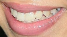 Picture of Ruth Righi teeth and smile