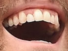 Picture of Ryan Reynolds teeth and smile
