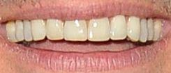 Ryan Seacrest's teeth