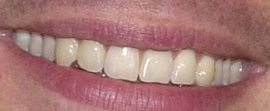 Picture Ryan Seacrest's teeth and smile