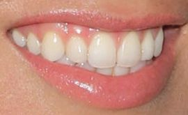 Picture of Sabrina Bryan teeth and smile
