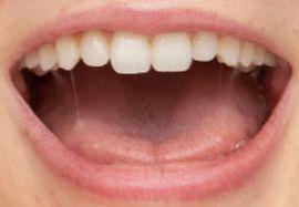 Picture of Sadie Sink teeth and smile